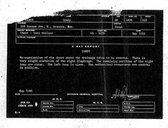 "The X-ray report dated May 7, 1965, from the Brandon hospital's old microfiche files, states that Henry Lawrence's left lung and the remaining portion of his right lung were ""clear."""