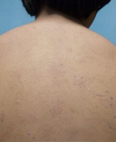 This undated photo provided by American Academy of Pediatrics shows a rash on an unidentified 11-year old boy from a nickel allergy. Case reports in medical journals detail nickel allergies from personal electronic devices, including laptops and cell phones. But it was an Apple iPad that caused an itchy body rash in this 11-year-old boy recently treated at a San Diego hospital, according to a report in Pediatrics. Nickel rashes aren't life-threatening but they can be very uncomfortable, and they may require treatment with steroids, and antibiotics if the skin eruptions become infected, said Dr. Sharon Jacob, an associate professor and dermatologist at the University of California, San Diego and Rady Children's Hospital, where the boy was treated. (AP Photo/American Academy of Pediatrics)