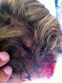 Jen Raposo suffered bruises and cuts to her head.