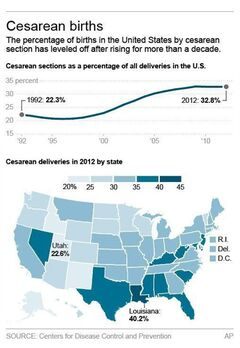 Graphic shows rate of cesarean births in U.S. and by state; 2c x 5 inches; 96.3 mm x 127 mm;