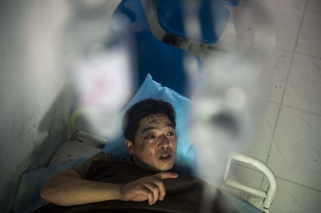In this photo released by China's Xinhua News Agency, miner Duan Xukang receives a treatment at a hospital in Fukang City, northwest China's Xinjiang Uygur Autonomous Region, after being rescued following a gas explosion at a coal mine in western China, Sunday, July 6, 2014. Rescuers on Sunday worked to free 17 miners trapped following the blast at the mine that happened on Saturday evening, according to the news agency. (AP Photo/Xinhua, Jiang Wenyao) NO SALES