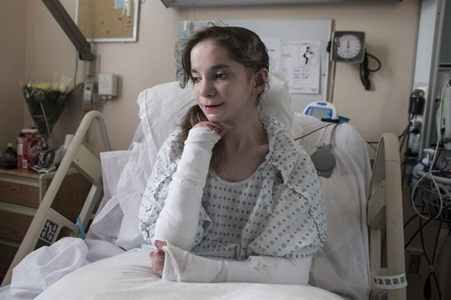 Mary Haddad, who suffers from the skin disorder epidermolysis bullosa, lies on her bed at Toronto's St. Michael's Hospital on Wednesday June 25, 2014. The twenty-year-old???s skin is so fragile that the slightest touch can deeply tear her skin and leave her with wounds that take several months to heal.THE CANADIAN PRESS/Chris Young