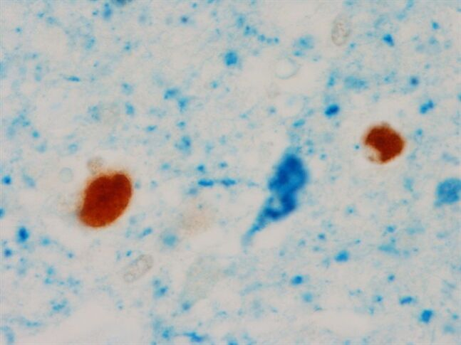 This undated image provided by the Mayo Clinic shows an abnormal TDP-43, the two circular brown blobs, in the brain of a patient with tau neurofibrillary tangle, blue flame shape blob in the middle, and Alzheimer's disease during the pathological analyses in Rochester, Minn. Scientists have linked a new protein to Alzheimer's disease, different from the amyloid and tau that make up the sticky brain plaques and tangles long known to be its hallmarks and was discussed Wednesday, July 16, 2014, at the Alzheimer's Association International Conference in Copenhagen. (AP Photo/Mayo Clinic)
